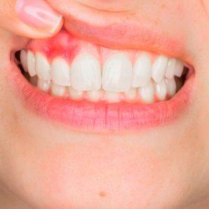 جلوگیری از ایجاد حساسیت دندانی